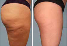 Intense Pulsed Light can seriously help you minimize or get rid of small wrinkles and crow's feet