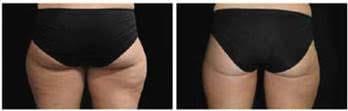 Cryolipolysis laser thigh - b4 & after freeze