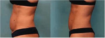 Cryolipolysis laser tummy - b4 & after