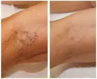 Cryolipolysis laser vericose veins 3 - b4 & after